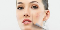 acne face girl skin